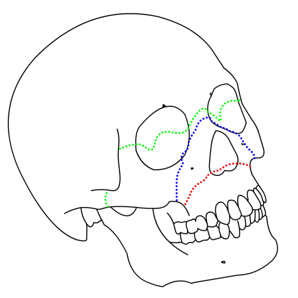 Doctors Gates Le Fort Classification Of Facial Fractures