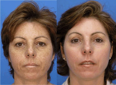 Anti Aging Treatments Laser Facial Resurfacing