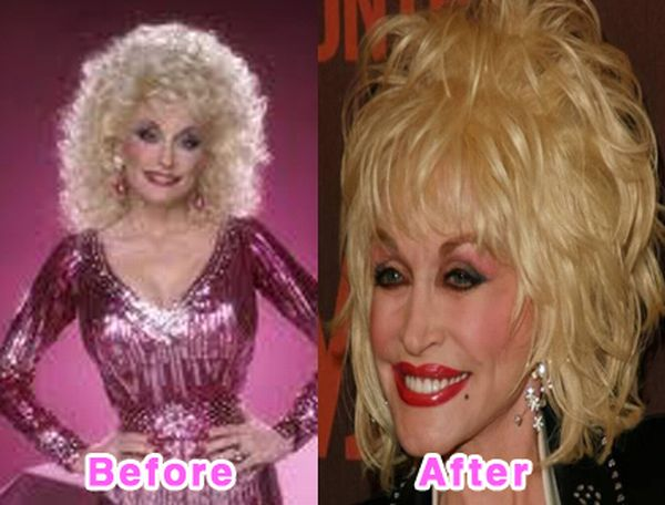 Weird: 16 Worst Celebrity Plastic Surgery Disaster