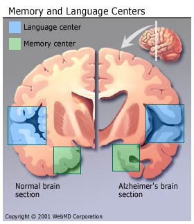 Alzheimers Disease – Causes, Symptoms and Treatment