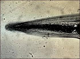 Oxiuros worm - parohiamogosani.ro