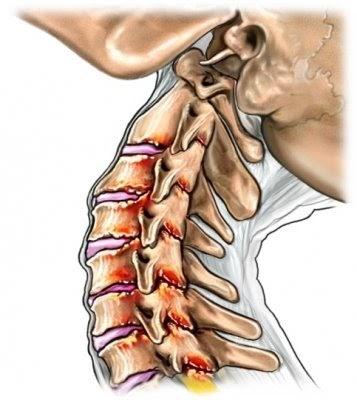 Definición y soluciones de los problemas de espalda..