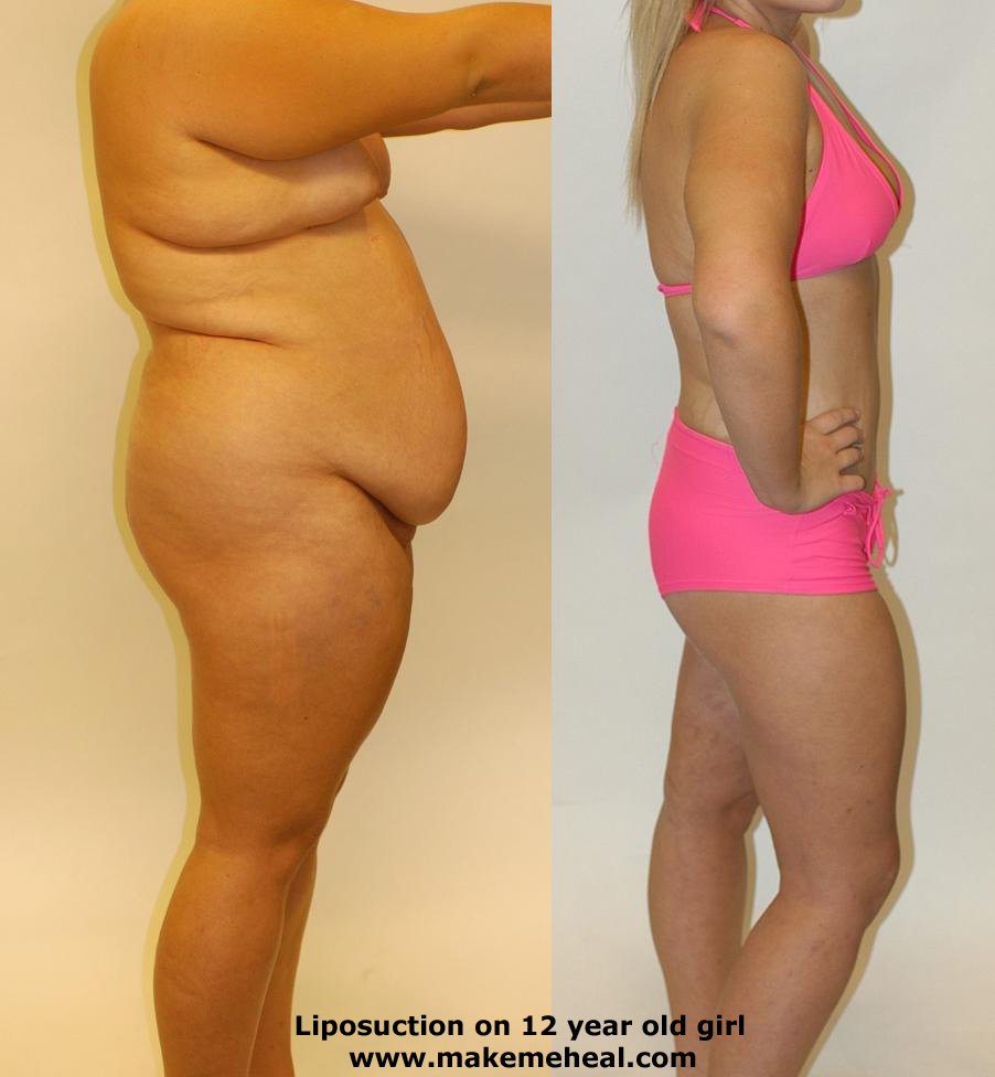 arms liposuction cost