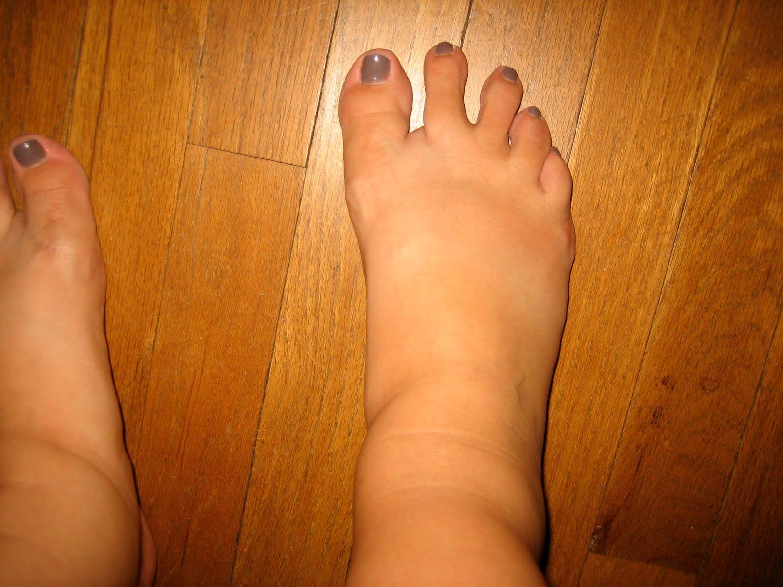 Fat Female Feet 3