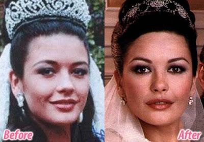 Celebrities before and after plastic surgery - 45 Pics ...