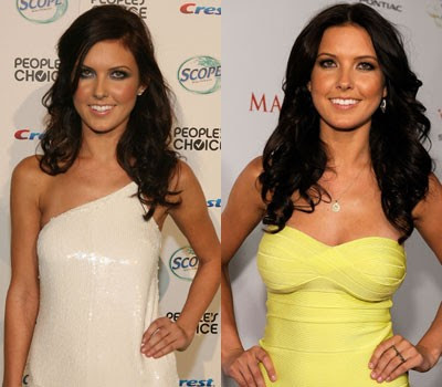 Audrina Patridge before and after pictures (image hosted by plasticcelebritysurgery.com)