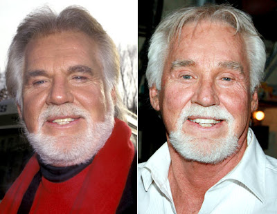 Believed Kenny Rogers Undergone Plastic Surgery Penis