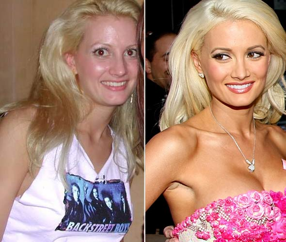 Holly Madison before and after plastic surgery (image hosted by plasticsurgerycelebrity.com)