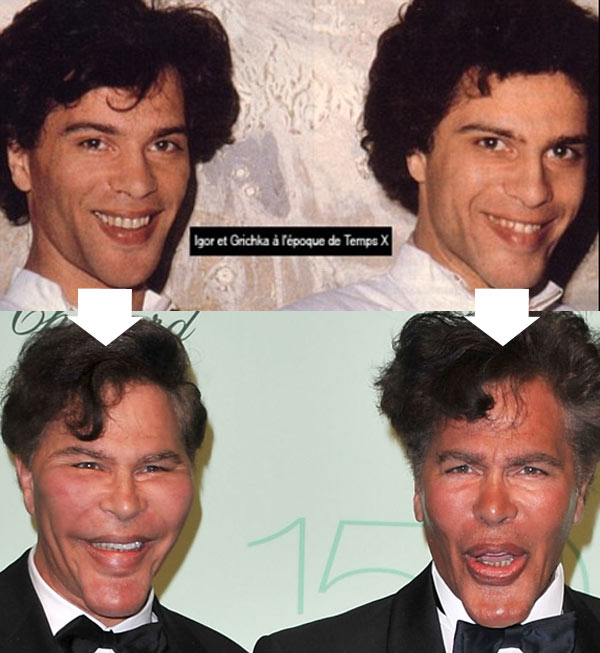 new celebrity buzz bogdanoff brothers before after plastic surgery. Black Bedroom Furniture Sets. Home Design Ideas