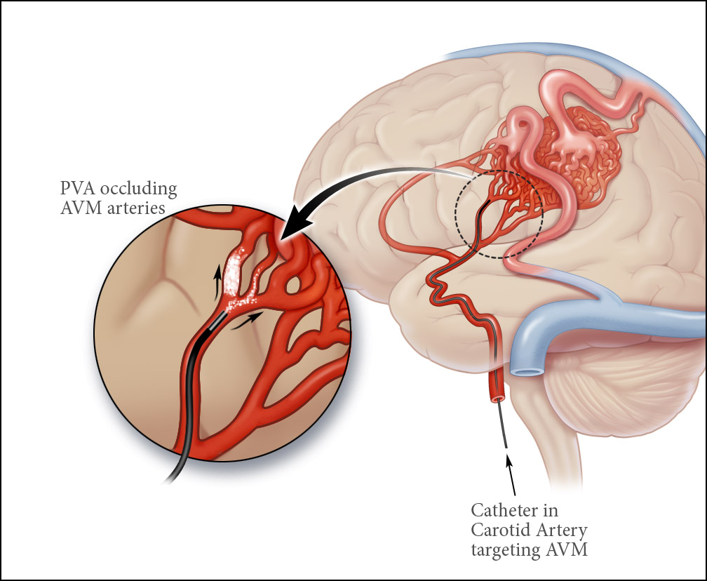 Causes of Stroke