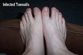 Toenail Fungus Treatment Before And After Image