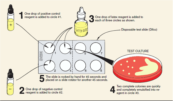 tests Bacterial latex antigen