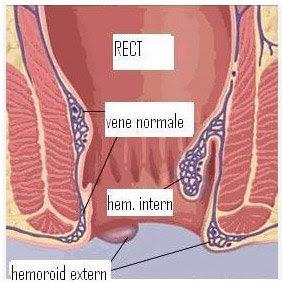 hemoroizii sunt vene varicoase