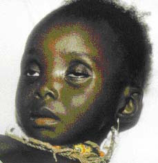 CHILDCARE.: Acute Diarrhea in Children.