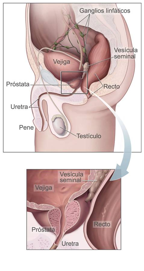 sintomas de prostata obstruida
