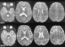 Askep Encephalitis Epub