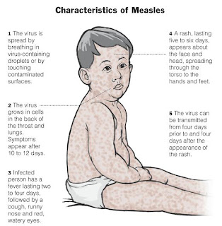 Measles-Rubella Supplementary Immunization Activity Readiness Assessment — India, 2017–2018