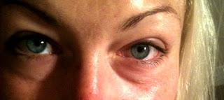ögon svider tårar