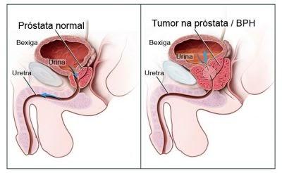 Cancer de prostata biodescodificacion akasha
