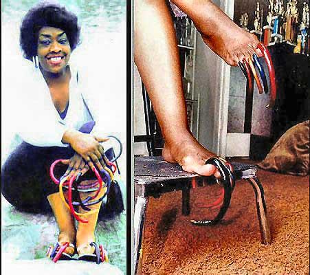 Questa signora sembra che si sia accorciate un po\u0027 le unghie dei piedi,  poiché ormai doveva camminare sui talloni. Lei dice che il marito un giorno  le ha