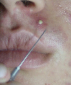 amudu: Pimples and Acne