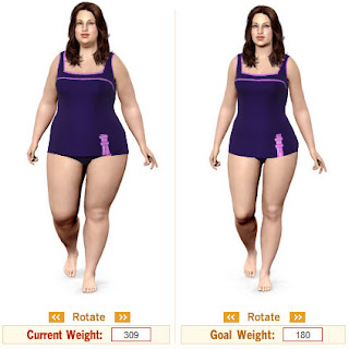 Extreme Weight Loss Guide: Extreme Weight Loss Surgery