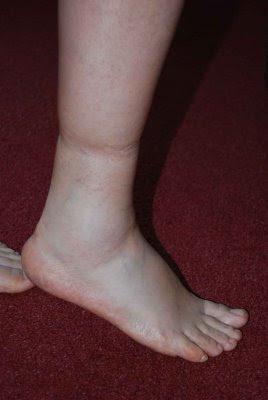 Retencion liquidos piernas de eliminar