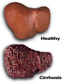 cirrhosis-liver