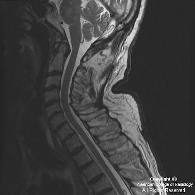 Neuroradiology On The Net Spinal Dural Arteriovenous Fistula