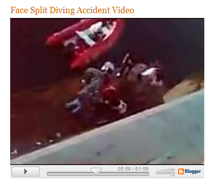 Robert Lindsay Returns: Face Split Diving Accident Video