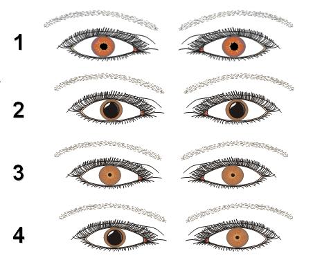 Mini Manual de TAS: Observação pupilar