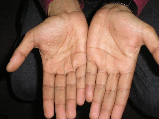 Vitiligo Skin Disorder Treatment Vitiligo Recovery Advice In Initial Stage