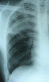 deteriorarea radiografiei articulației încheieturii semne ale artritei genunchiului