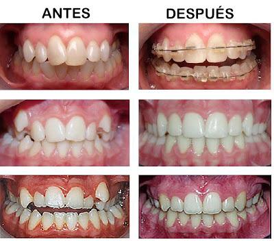 Orthodontic Braces In Reynosa