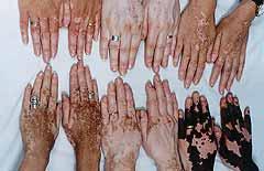2ff7d3258 Saúde!! Saíba tudo sobre o vitiligo e Psoríase. - Decorações e Artes
