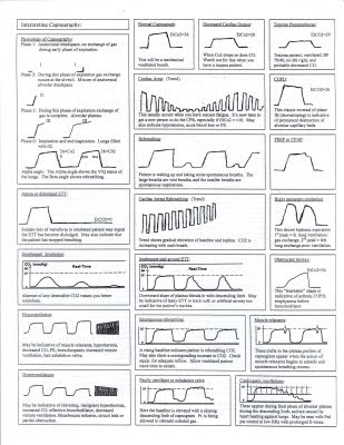Respiratory Therapy Cave: Capnography Cheat Sheet