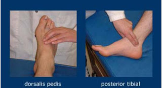 Dorsalis Pedis Pulse Anatomy of Foot...
