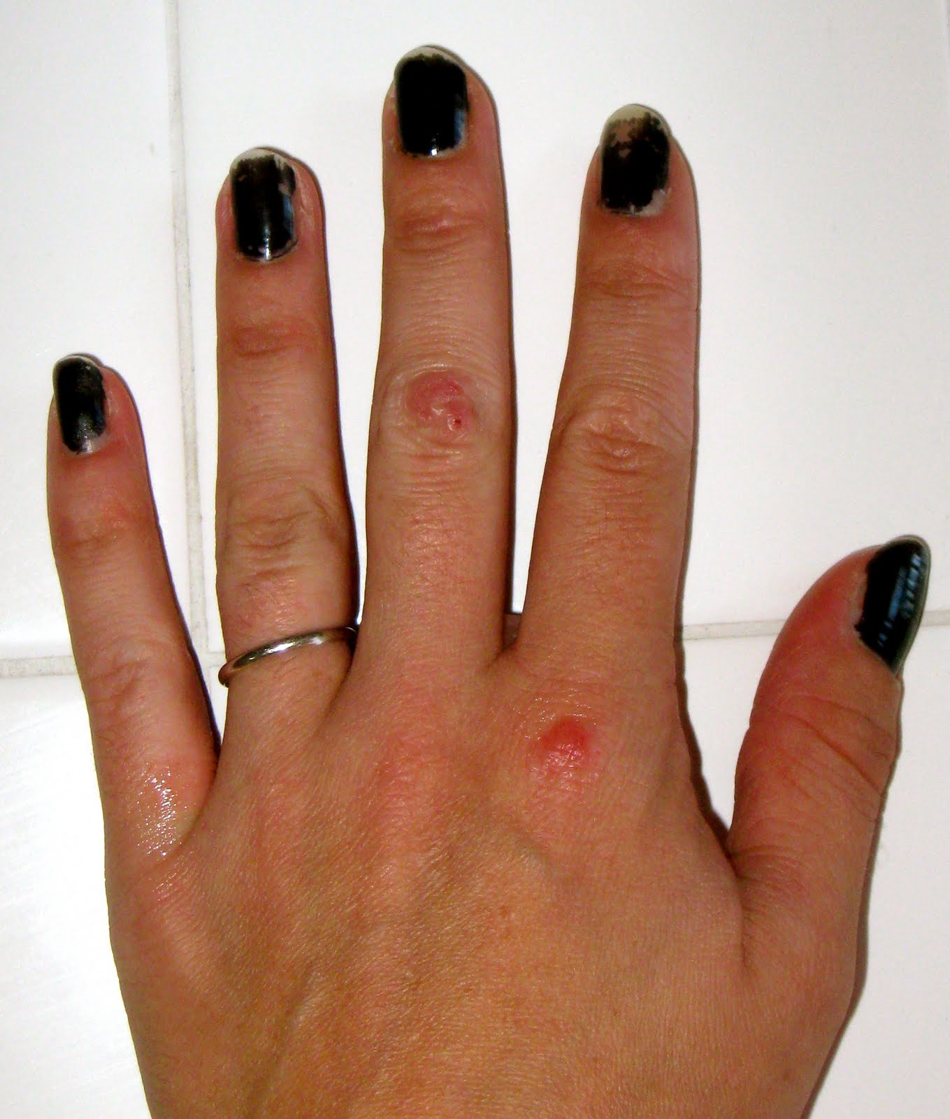 Bump On Knuckle Joint Middle Finger Pictures To Pin On