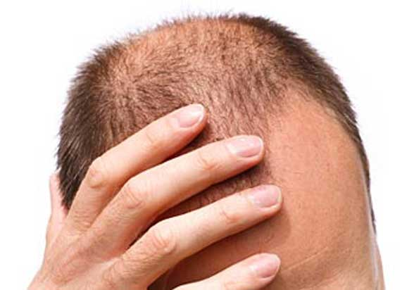 Hair Loss Scalp Dysfunction Seborrheic Dermatitis