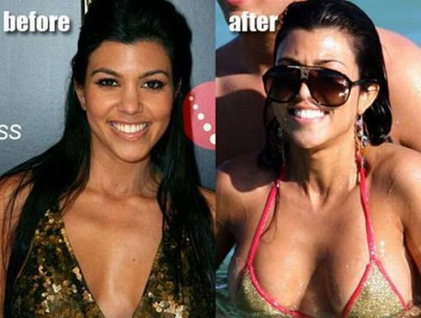 Breast Implants Before And After Pictures 121