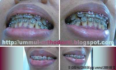 O R T H O D O N T I Kawat Gigi dan Celah di Pinggir Gigi