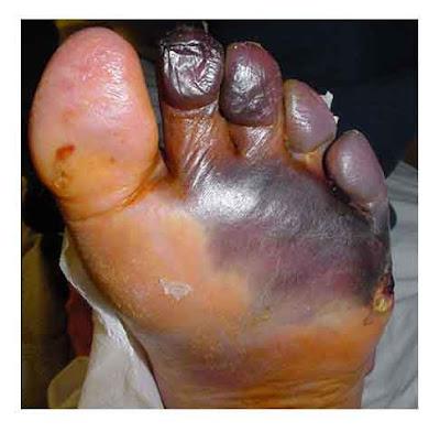 gangrene1.jpg