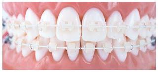 aparelho escurece dentes