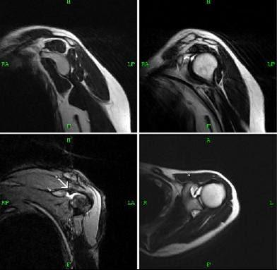 Rotator Interval Tear Mri Sumer S Radiology Blog