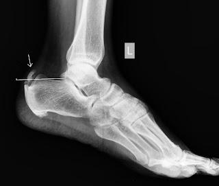 Bone Spur On Back Of Heel