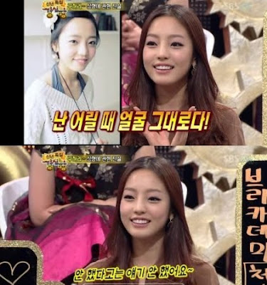 بعض المشهورين في كوريا قبل و بعد عملية التجميل hara.jpg