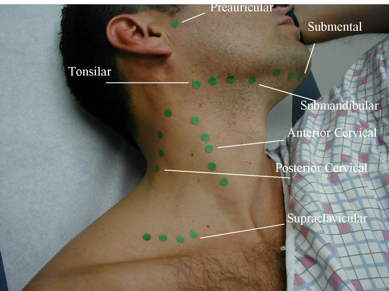 diagram glands under chin pemeriksaan kelenjar getah bening diagram of sweat glands valves #9