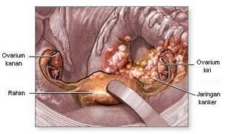 Kanker Ganas Pembunuh Wanita: 3. Kanker Indung Telur atau Kanker Ovarium