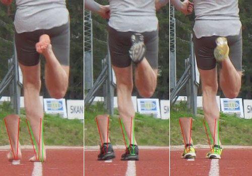 Severe Overpronation Running Shoes Asics