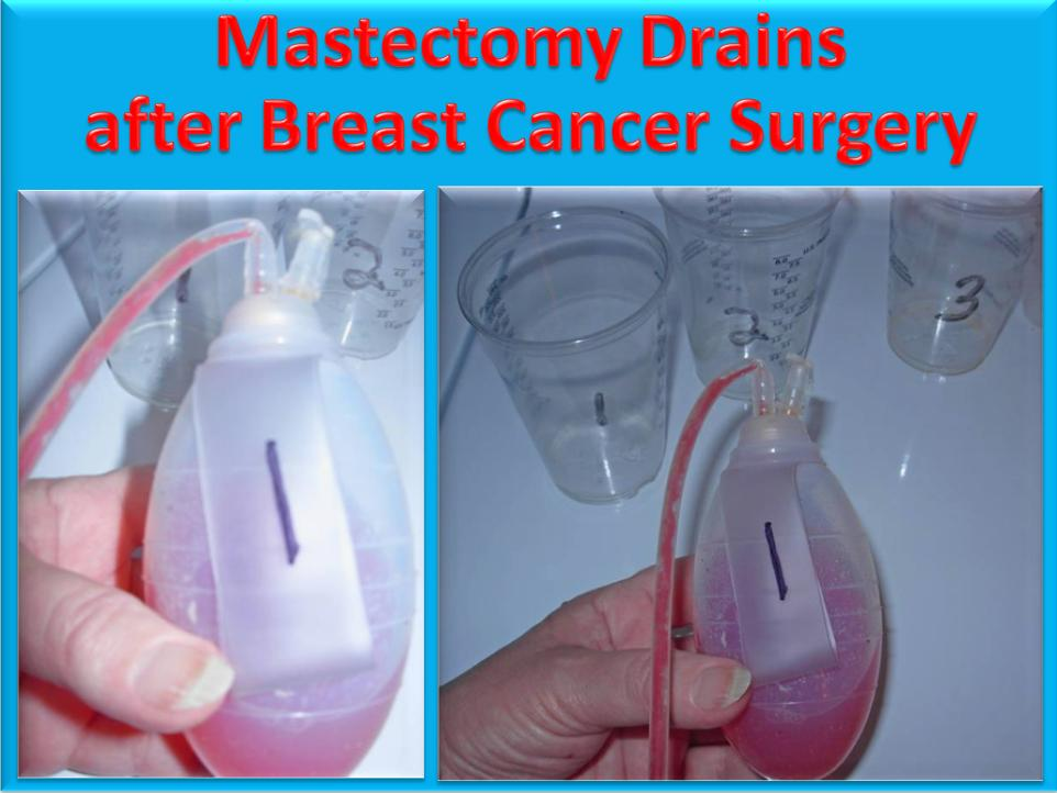 Ask Dj Lyons Video Tutorial How To Empty Mastectomy